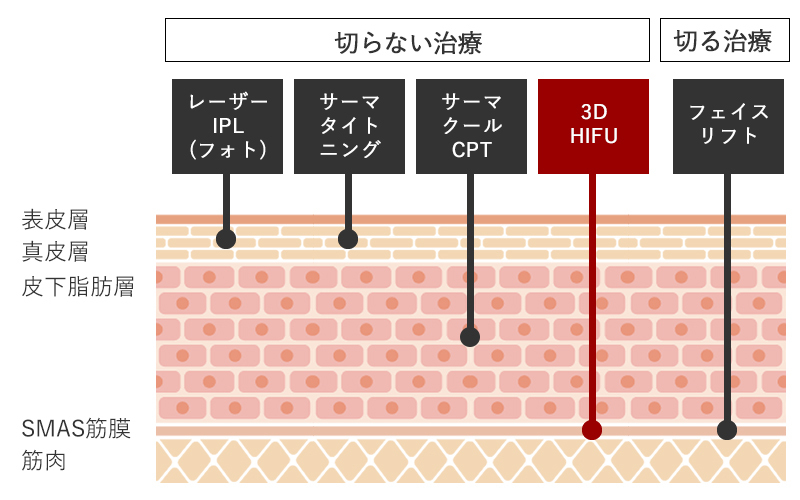 3D HIFUの特徴