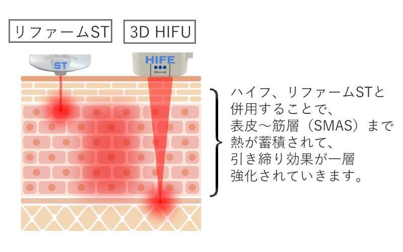 3D HIFUとリファームSTの併用