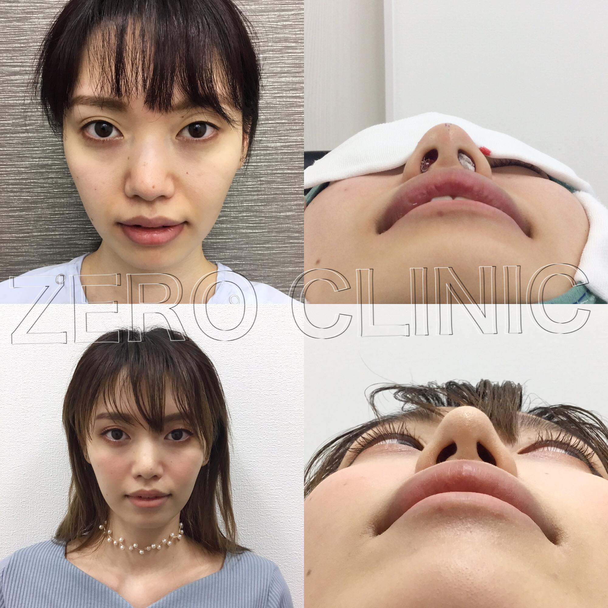 する 小さく の 方法 穴 鼻