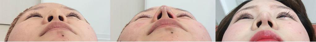 鼻尖修正の必要性