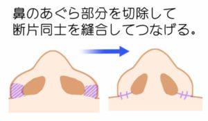 小鼻縮小のシェーマ
