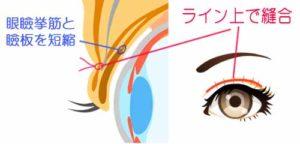 眼瞼下垂・解剖図
