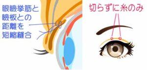 プチ眼瞼下垂