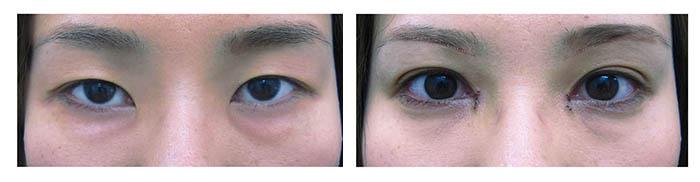 下眼瞼下制の症例1