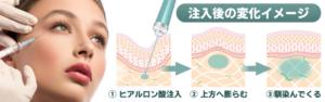 ヒアルロン酸注射図解