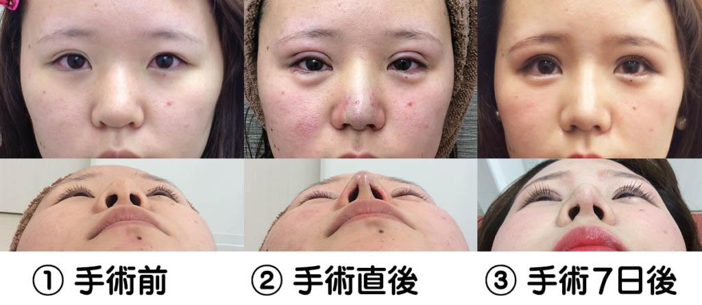鼻の整形に関する持論01