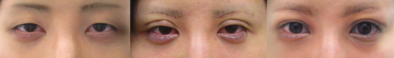 眉下タルミ取り症例