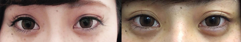 涙袋ヒアルロン酸の症例