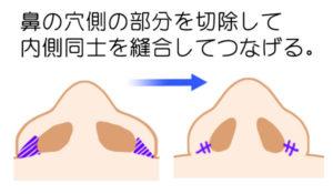 小鼻縮小内側切除法のシェーマ