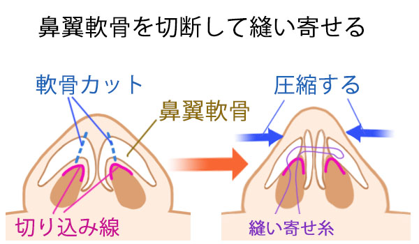 鼻尖手術のシェーマ2
