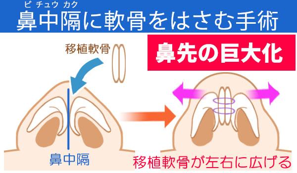 軟骨移植で鼻先が大きくなる