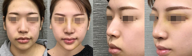 鼻+あご症例2