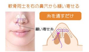 プチ鼻尖(鼻尖埋没法)のシェーマ