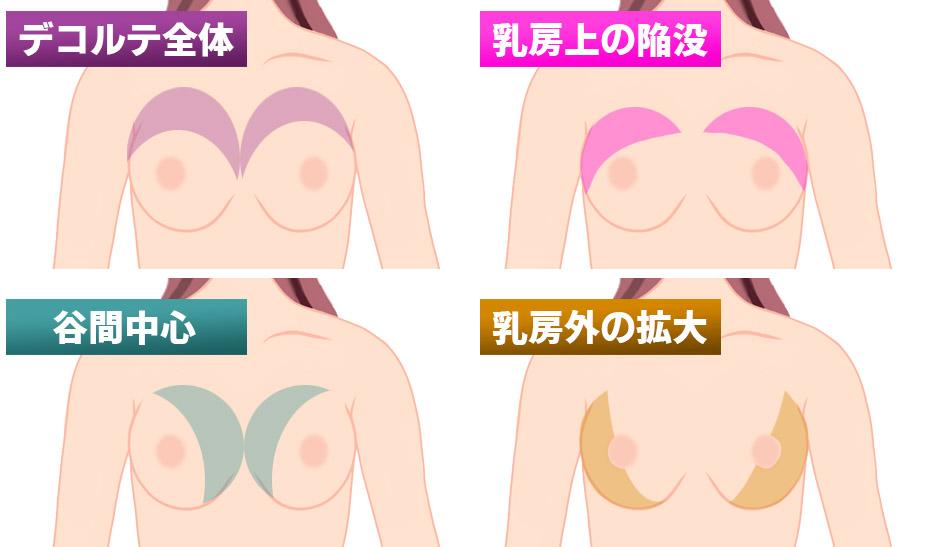 ヒアルロン酸豊胸の注入エリア